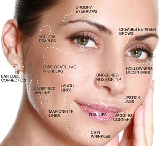 A woman's face showing the different areas to have BOTOX treatment